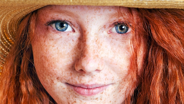 How To Check Your Skin And Moles