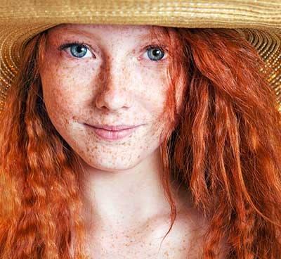 Redhead-freckles