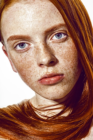 Freckles-cover-face