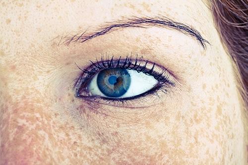 Freckles-eye