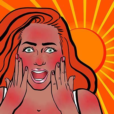 Sun-burn-remedies-redhead