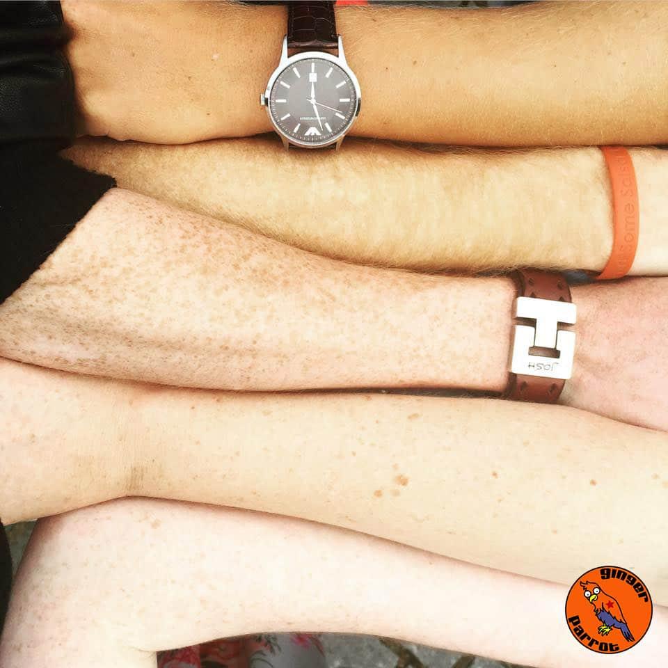 RHD2015-freckles