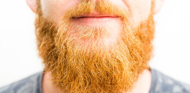 Why-do-men-have-ginger-beards-1