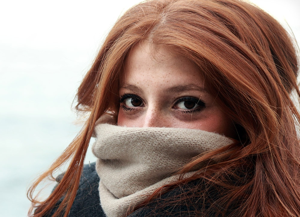 Redhead-skin-in-winter