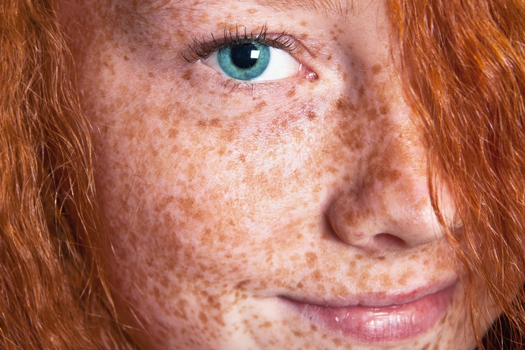 Freckle picture redhead